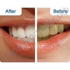 Отбеливающие полоски для зубов CREST WHITESTRIPS 3D (1 пара - для верхнего и нижнего рядов зубов)
